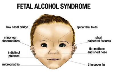 Credit: Plano Children's Medical Clinic